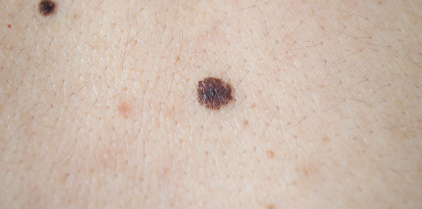 Lesions on a person's skin