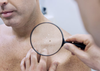 Man getting his suspicious mole checked by a Spotscreen screening practitioner