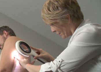 Spotscreen practitioner performs a skin cancer screening