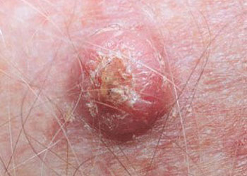 Skin Cancer - Squamous Cell Carcinoma (SCC)