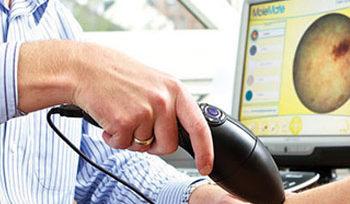 Spotscreen use advanced skin screening technology