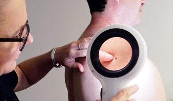 Spotscreen practitioner checking skin